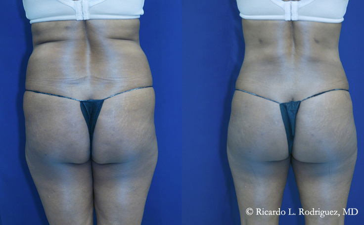 Brazilian Butt Lift with 545 cc of fat injected into each cheek (before and after)