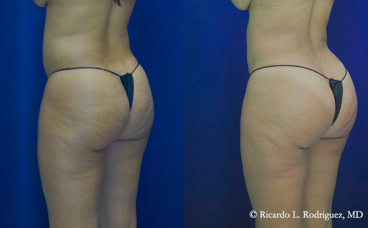 photo of a patient before and after a brazilian butt lift