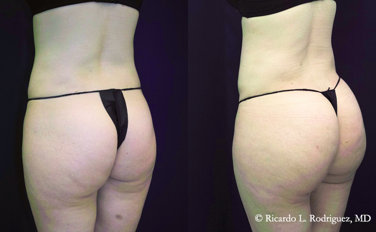 pictures of a patient before and after brazilian butt lift