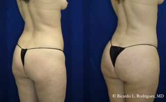 before and after pictures of a brazilian butt lift patient