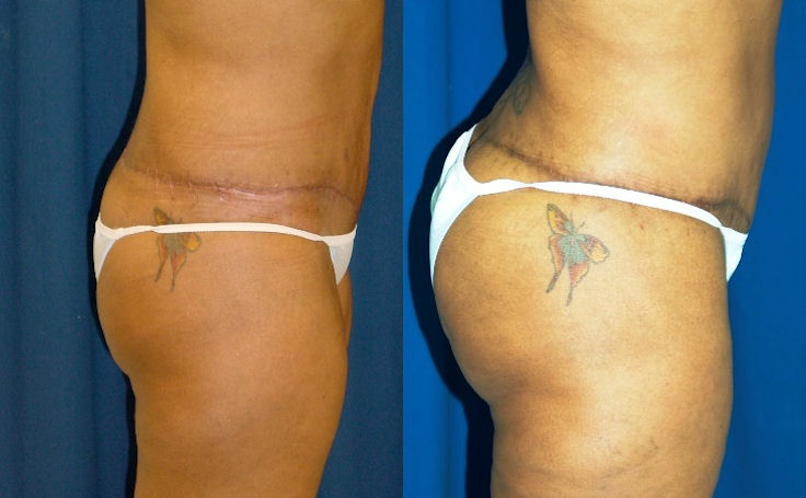 Brazilian Butt Lift after Body Lift with another surgeon