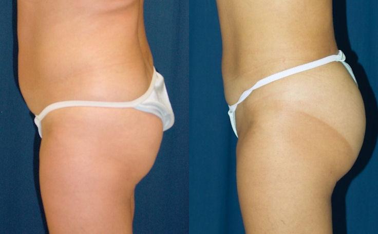 Brazilian Butt Lift on 148 lb female