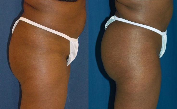 Brazilian Butt Lift with 700 cc fat each buttock cheek