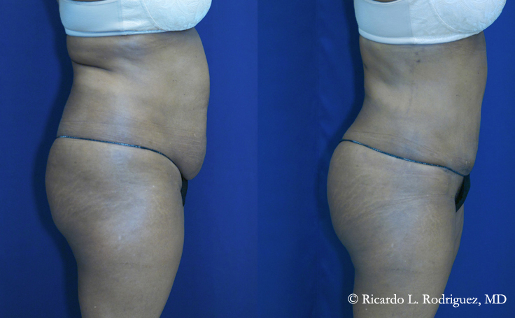 Before and after Brazilian Butt Lift with 545 cc of fat injected into each cheek