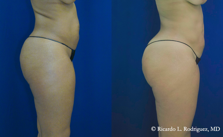 pictures of a brazilian butt lift patient before and after surgery