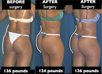 A collage of photos of a case study into Brazilian butt lift after weight change case study photo.