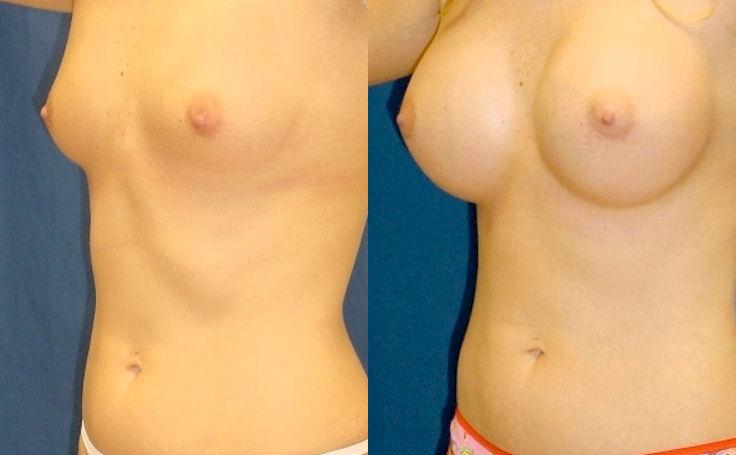 Moderate Profile Breast Augmentation