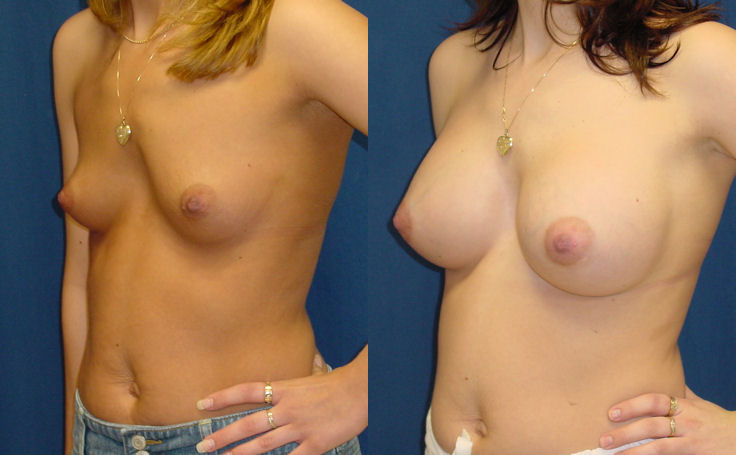 Breast Augmentation with 500cc Round Implant (angle view)