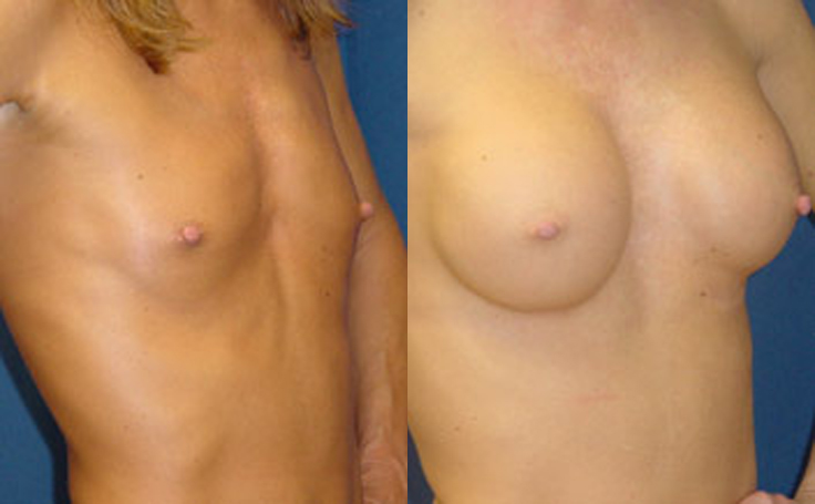 350cc Round Saline Implants (angle view)