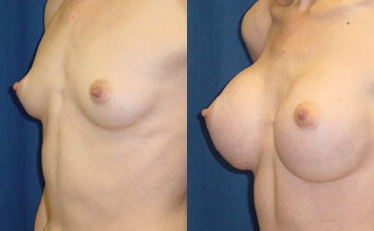 XXXcc Saline Implants (angle view)