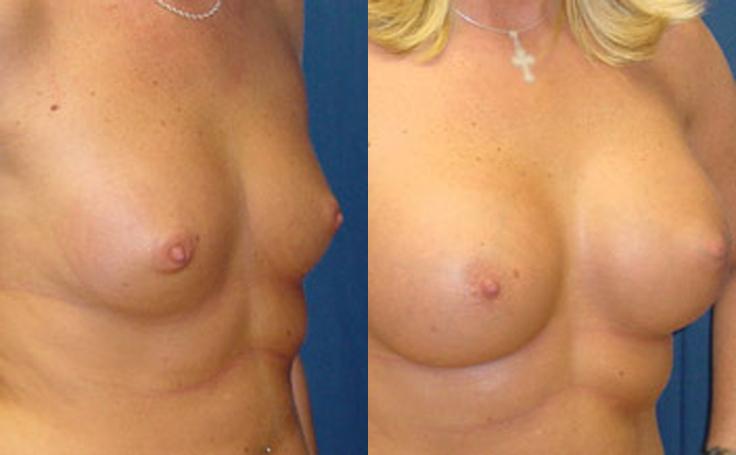360 Saline Implant (angle view)