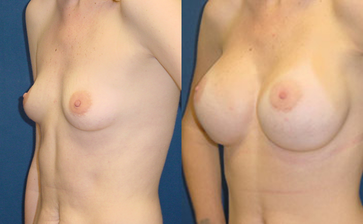 Teen breast augmentation, orgasm after no sex