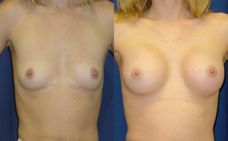 XXXcc Breast Implant (front view)