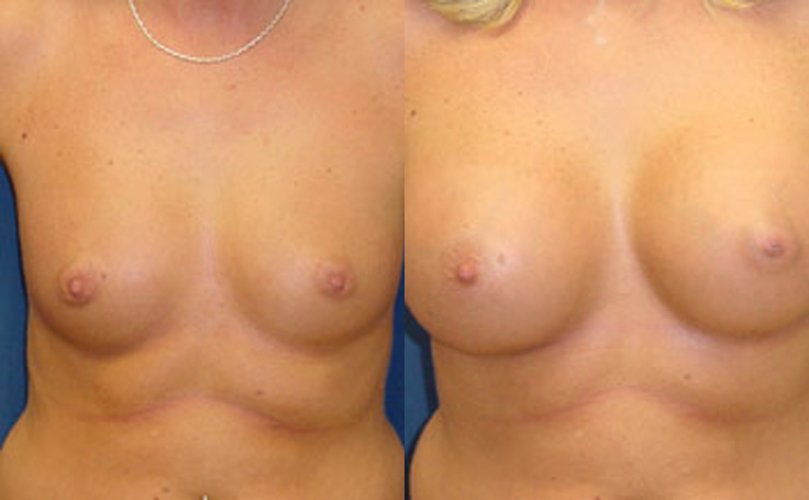 360cc Saline Implants (front view)