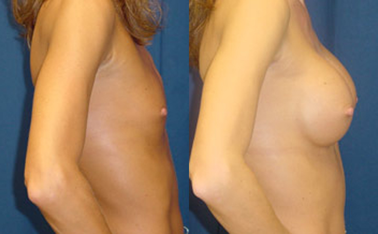 350cc Round Saline Implants (side view)