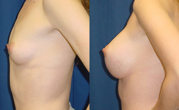 XXXcc Saline Implants (side view)