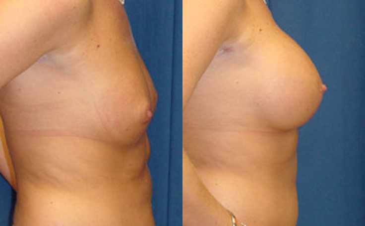 360cc Saline Implant (side view)