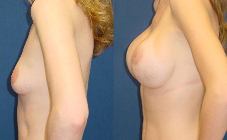 500cc Saline Implant (side view)