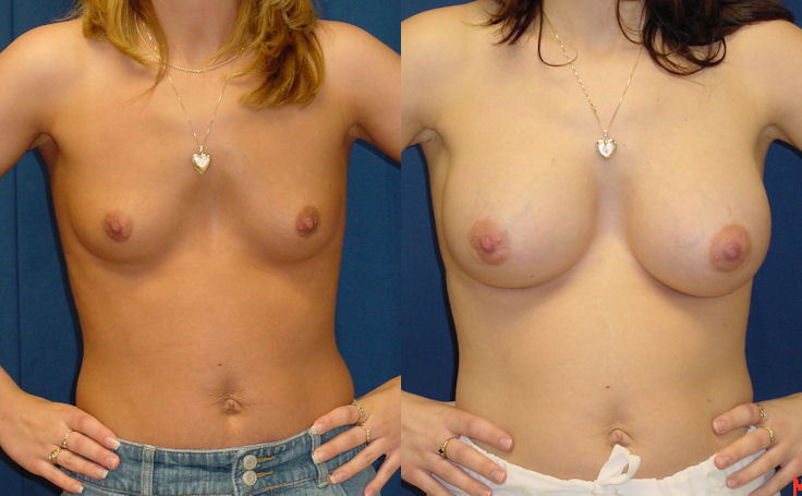 Breast Augmentation with 500cc Round Implant (front view)
