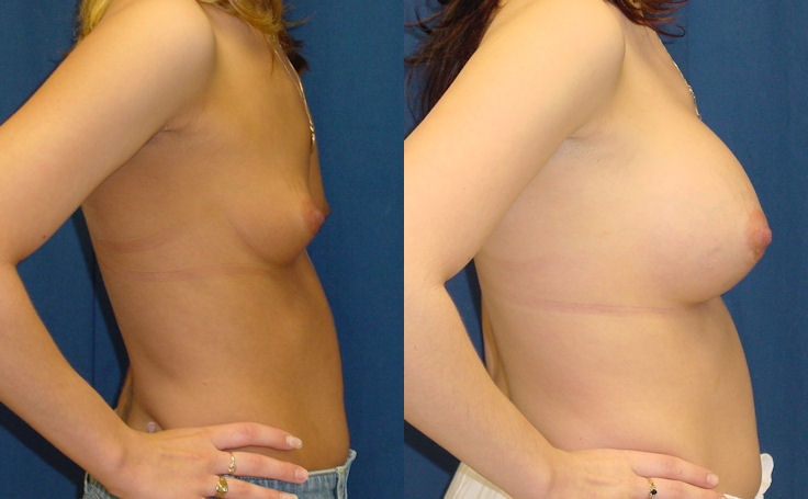 Breast Augmentation with 500cc Round Implant (side view)