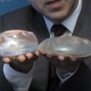 Dr Ricarodo L. Rodriguez holding out 2 different types breast implants in his hands.