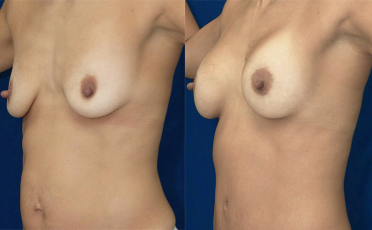 Breast Lift with Implants (angle view)