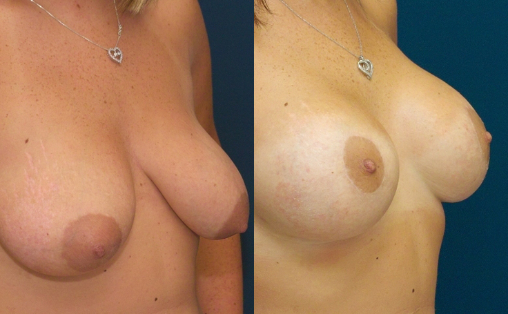 Breast Lift Mastopexy with implants - Before and After