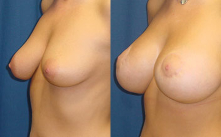 before and after breast lift with implants photo