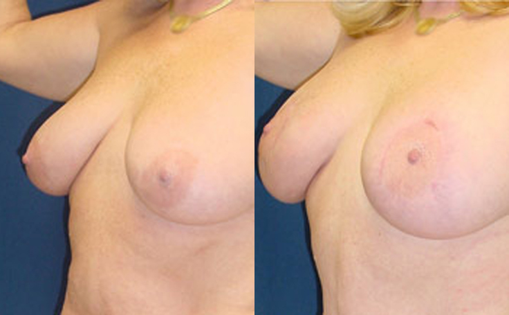 Breast Lift with 375cc saline implants (angle view)