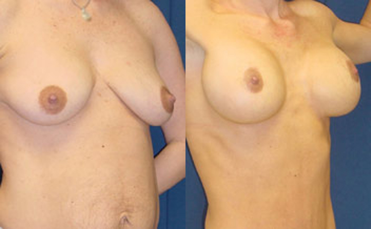 Breast Lift with 350cc silicon implants (angle view)