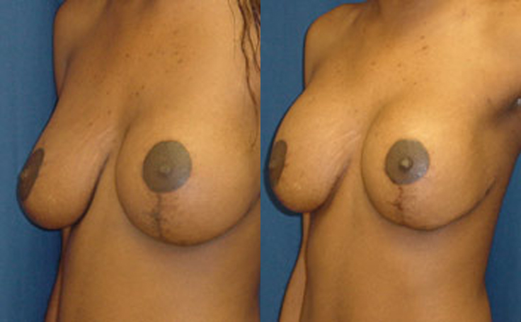 Breast Lift with 350cc implants (angle view)