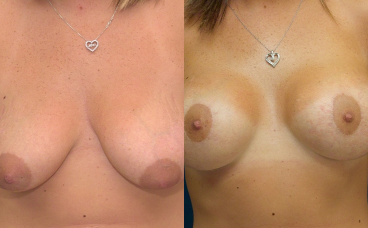 Breast Lift with implants (front view)