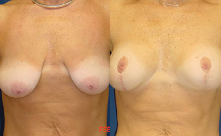 Breast Lift with 225cc implants (front view)