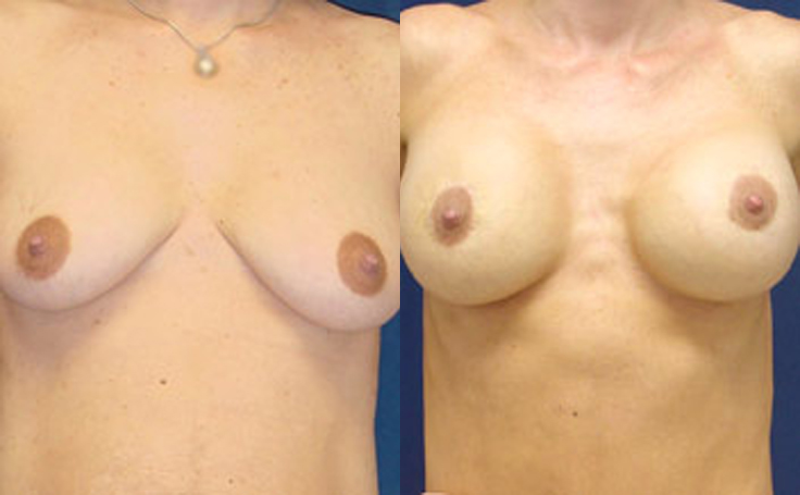 Breast Lift with 350cc silicon implants (front view)