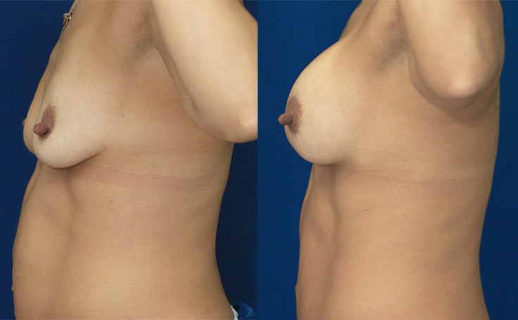 Breast Lift with Implants (side view)
