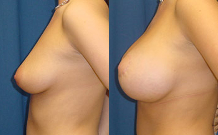 Breast Lift with 500cc silicon implants (side view)