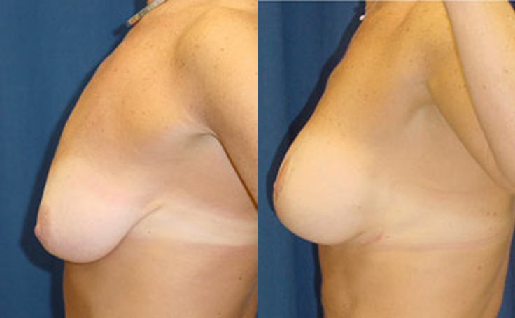 Breast Lift with 225cc implants (side view)