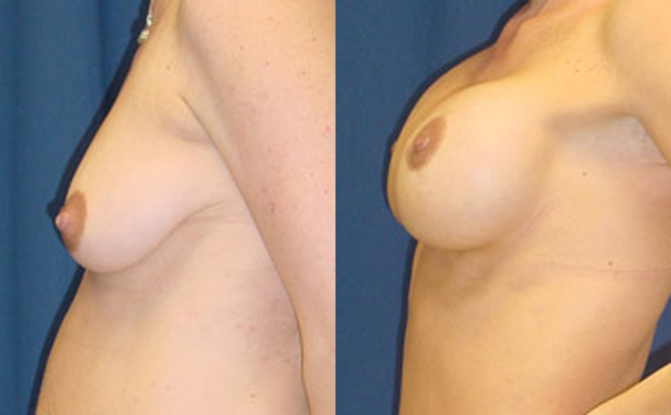 Breast Lift with 350cc silicon implants (side view)