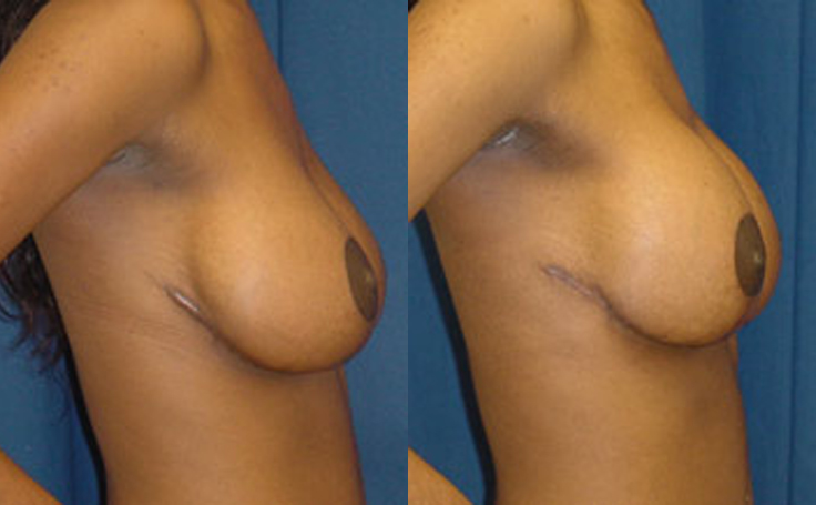Breast Lift with 350cc implants (side view)