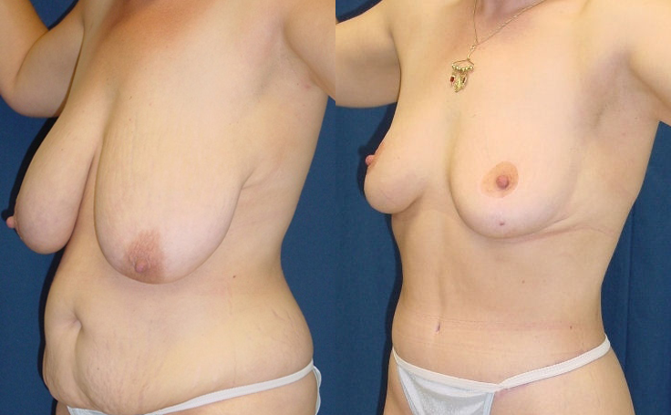 Breast Reduction with tummy tuck (angle view)
