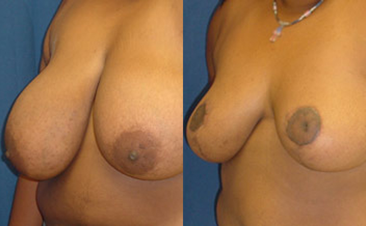Breast Reduction with vertical incision (angle view)