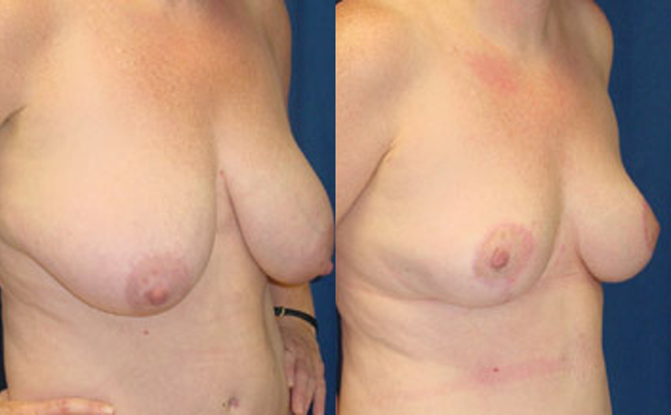Breast Reduction (angle view)