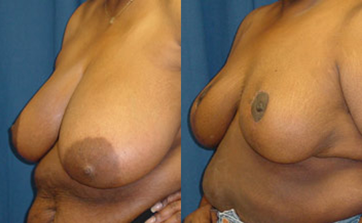 Breast Reduction with vertical scar technique (angle view)