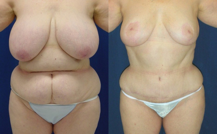 Before and After Photos Breast Surgery - Plastic