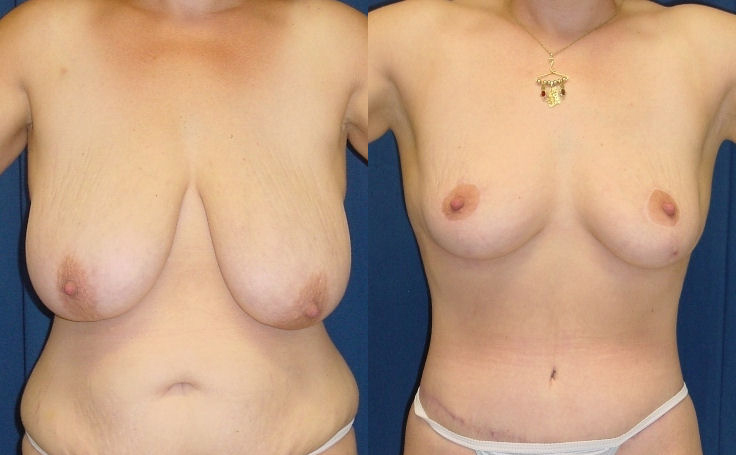 Breast Reduction with tummy tuck (front view)