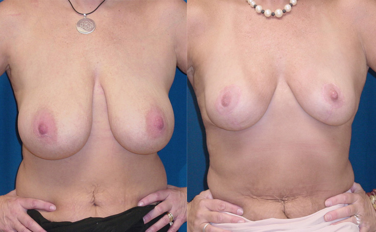Breast Reduction (front view)