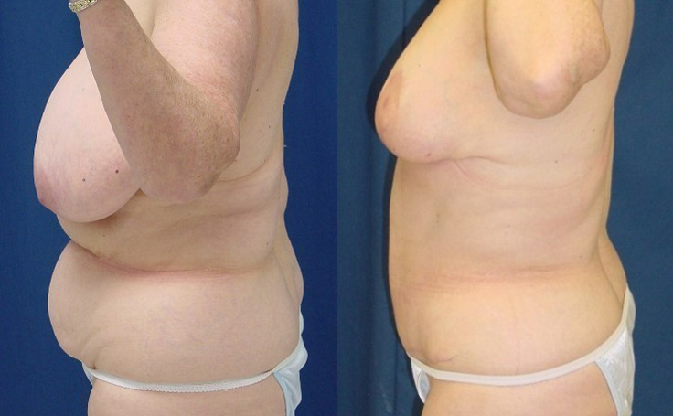 Breast Reduction with tummy tuck (side view)