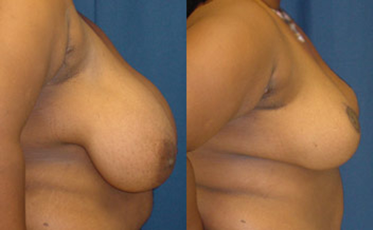 Breast Reduction with vertical incision (side view)