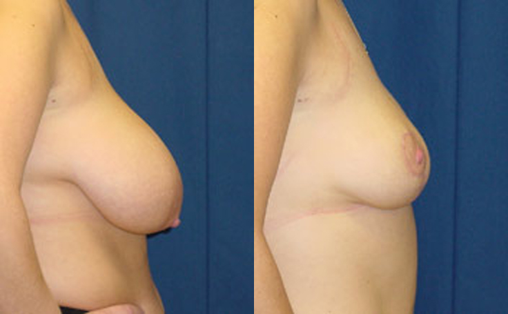 Breast Reduction (side view)