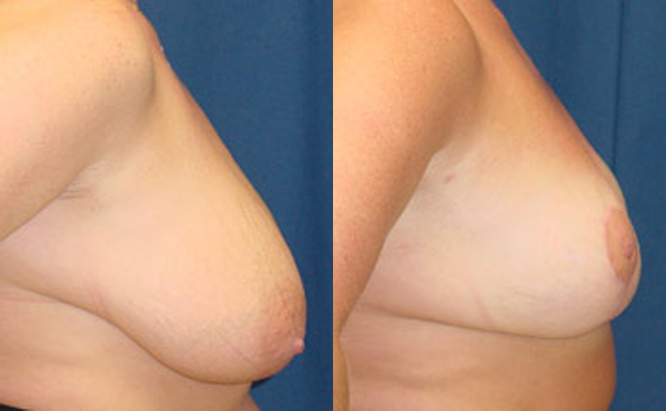 Breast Reduction with vertical scar technique (side view)